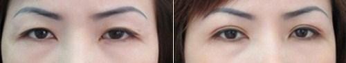 phẫu thuật cắt mí mắt trên