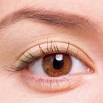 Cắt mỡ mí mắt, lấy mỡ mí mắt có đau không? Dưới góc nhìn Chuyên Gia