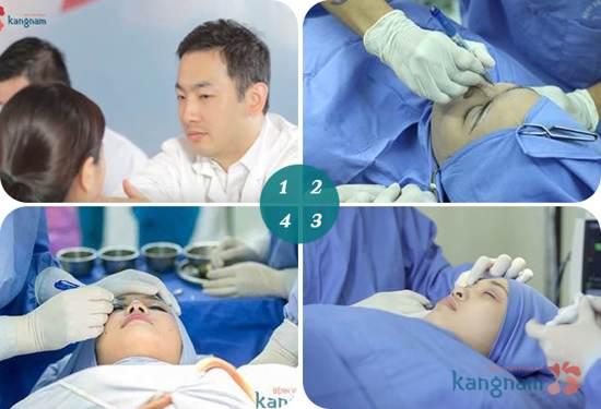 Tao-khoe-mat56