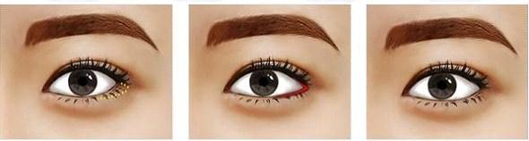 Thẩm mỹ mắt to 45557