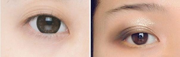 mắt mí rưỡi