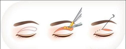Thời gian hồi phục sau cắt mí mắt11