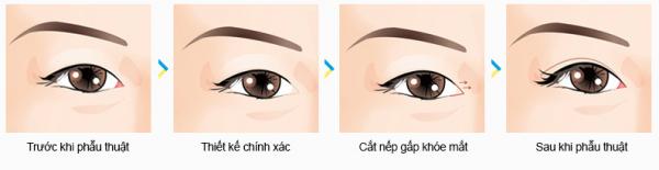 Ti hí mắt lươn khắc phục như thế nào