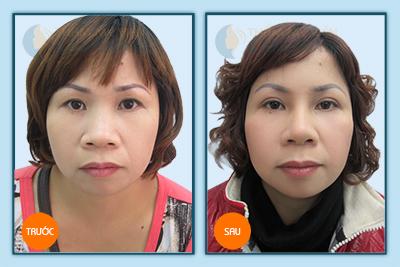 Hiệu quả sau khi cắt mí mắt tại TMV Kangnam