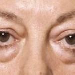 Nguyên nhân gây bọng mỡ mí mắt và cách khắc phục