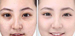 Cách chữa bọng mỡ mắt dưới 7