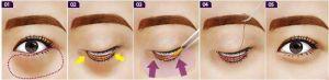 Cách chữa bọng mỡ mắt dưới 8