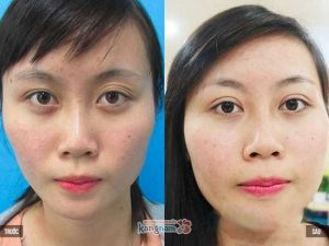 Cách chữa bọng mỡ mắt dưới 9