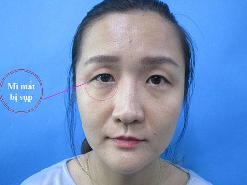 cách chữa sụp mí mắt 2