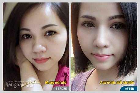 Cách chữa sụp mí mắt 3