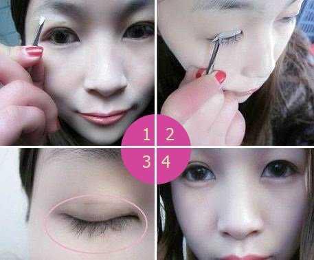 Cách chữa sụp mí mắt 5
