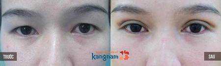 Cách chữa sụp mí mắt 8