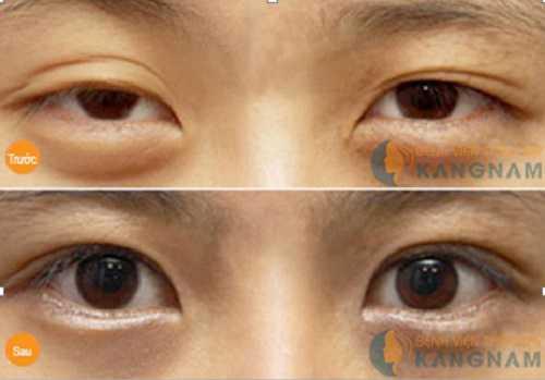 Cách giảm mỡ mí mắt trên