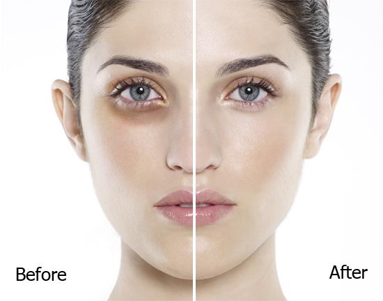 Cách làm mắt to hơn nhờ làm sáng quầng thâm mắt 3