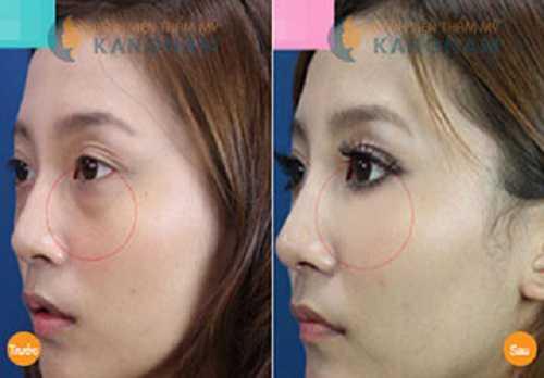 Cách giảm mỡ mí mắt trên và dưới