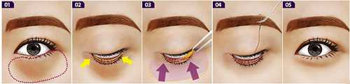 Cách giảm mỡ mí mắt