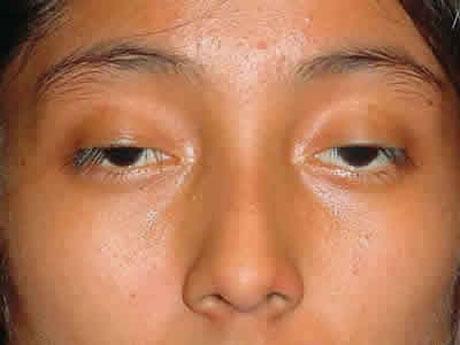 Cải thiện thị lực cho đôi mắt sụp mí bẩm sinh