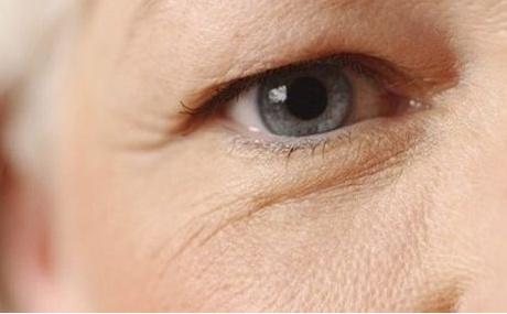 Cắt da thừa mí mắt dưới giúp lấy lại đôi mắt trẻ trung xinh đẹp1