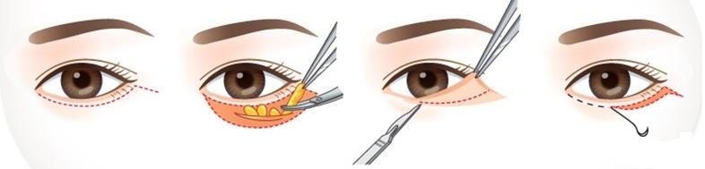 Thao tác cắt da thừa mí mắt dưới khá đơn giản nhanh chóng1