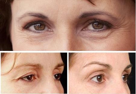 Cắt da thừa mí mắt - Giải pháp lấy lại vẻ trẻ trung cho đôi mắt