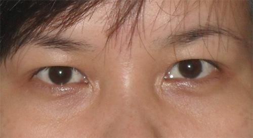 Cắt da thừa mí mắt trên (dưới) được thực hiện như thế nào? 5