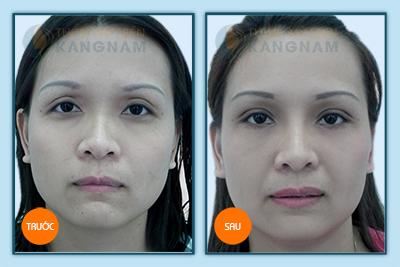 Cắt da thừa mí mắt trên (dưới) được thực hiện như thế nào? 1