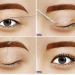 Cắt mắt 2 mí có để lại sẹo không và có an toàn không?