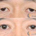 Sau khi cắt mí mắt bao lâu thì ổn định?