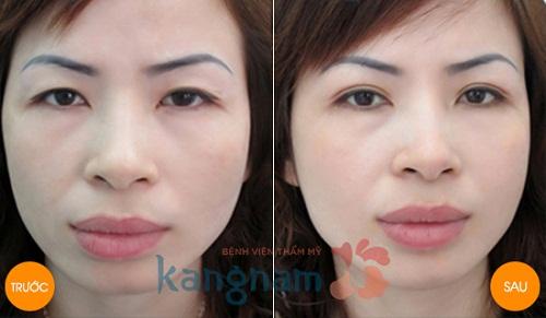 Kết quả cắt mí mắt bị sụp tại Kangnam2
