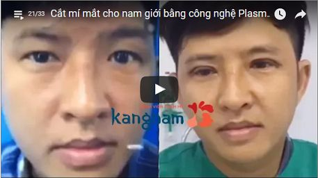 Xem tận mắt HIỆU QUẢ sau cắt mí mắt nam tại BVTM Kangnam