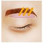 Cắt mí mắt có đau không? Thời gian cắt mí mắt là bao lâu?