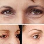 Cắt mí mắt có nguy hiểm không, có ảnh hưởng đến mắt không?