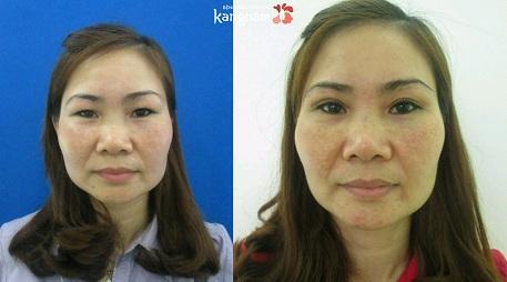 Phẫu thuật cắt mí mắt giá bao nhiêu-4