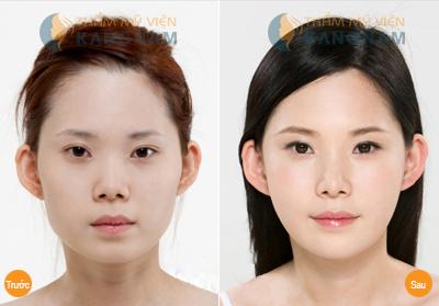 Kết quả cắt mí mắt Hàn Quốc tại thẩm mỹ viện Kangnam
