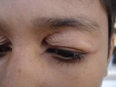 mắt có nhiều da chùng