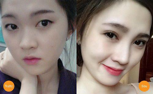 Phẫu thuật cắt mí mắt tại Kangnam