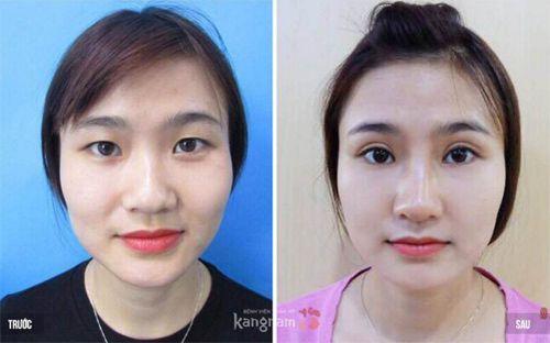 Phẫu thuật cắt mí tại Kangnam