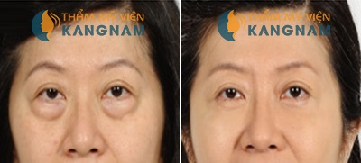 Kết quả cắt mỡ mí mắt
