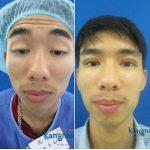 Chữa sụp mí mắt bẩm sinh ở đâu tốt, an toàn số 1 tại Việt Nam