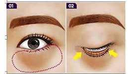 Có nên phẫu thuật cắt bọng mỡ mắt không? Chuyên gia phân tích