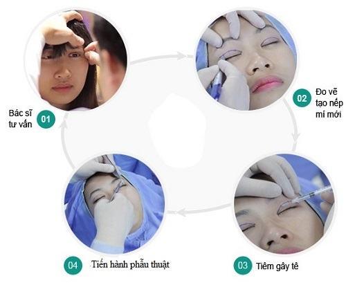 Đi tìm nguyên nhân sụp mí gây mất thẩm mỹ cho đôi mắt 3
