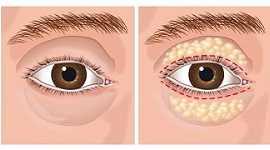 Lấy mỡ mí mắt ở đâu tốt nhất? Share địa chỉ cắt mỡ mí mắt uy tín nhất