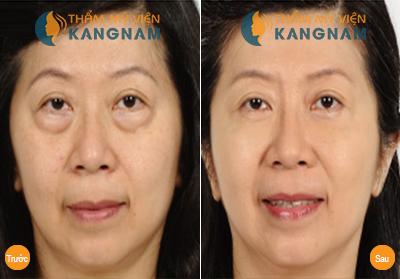 giải pháp an toàn khắc phục bọng mỡ dưới mắt