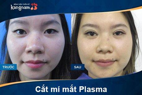 hình ảnh trước sau cắt mí mắt plasma