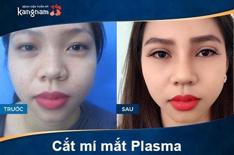 hình ảnh trước và sau cắt mí mắt plasma