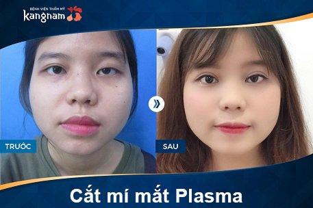hình ảnh cắt mí plasma