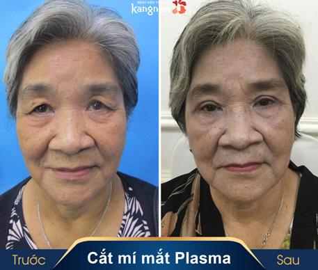 hình ảnh cắt mí mắt plasma kangnam