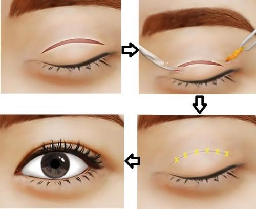 Kết quả cắt mí mắt Hàn Quốc duy trì được bao lâu?