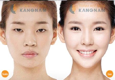 Làm thế nào để khắc phục mắt xếch hiệu quả?