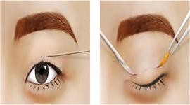 Lấy mỡ mí mắt có để lại sẹo không? Review ý kiến từ Chuyên Gia